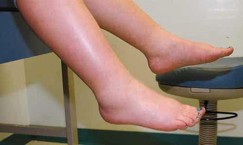 Καταπολεμήστε την κατακράτηση υγρών στα πόδια