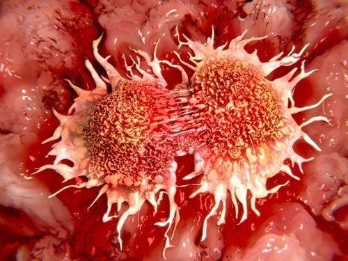 Λεμόνι για την καταπολέμηση όγκων - Καρκινικά κύτταρα