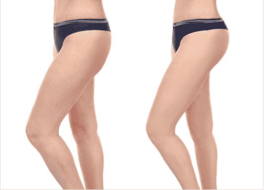 Ασκήσεις για αδυνάτισμα και τόνωση των μηρών