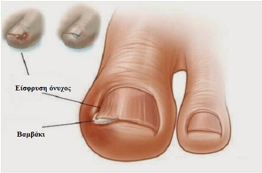 δάχτυλα των ποδιών