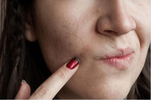 Τα 7 αμαρτήματα της φροντίδας του δέρματος