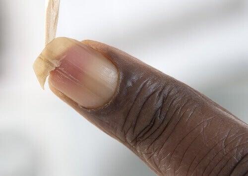 Δυναμώστε τα εύθραυστα νύχια