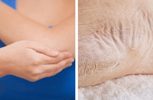 Ξηροί αγκώνες και πέλματα: αντιμετώπιση σε μία εβδομάδα