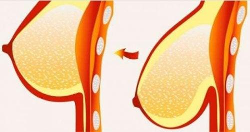 8 συμβουλές για την αντιμετώπιση της χαλάρωσης του στήθους