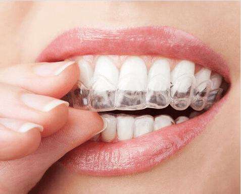 τρίζετε τα δόντια όταν κοιμάστε βαθιά