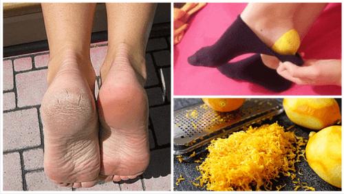 Φλούδες λεμονιού για τη θεραπεία των ποδιών σας