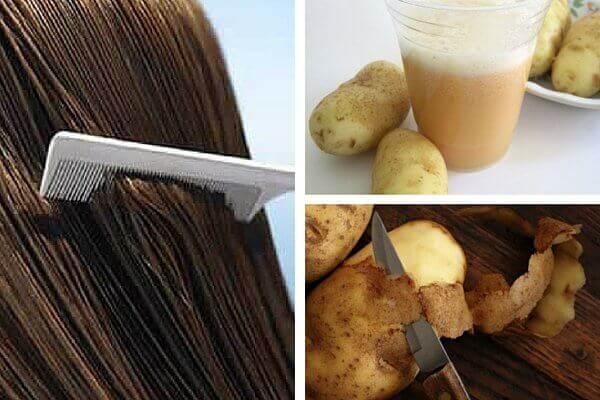 nero-patatas-dynamoma-mallion