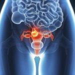 1-endomitriosi