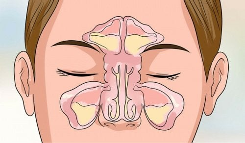 Αποτέλεσμα εικόνας για βουλωμενη μυτη