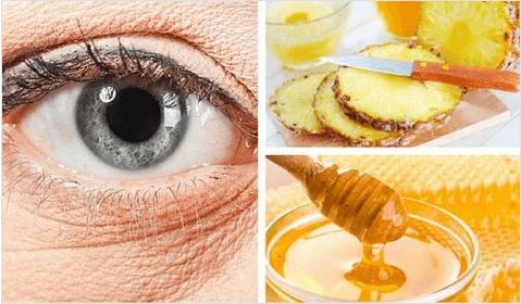Φυσική μάσκα με ανανά για τις ρυτίδες κάτω από τα μάτια