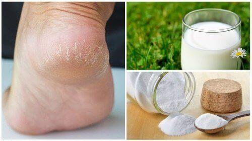 Πιο απαλά πόδια με μόλις δύο φυσικά συστατικά