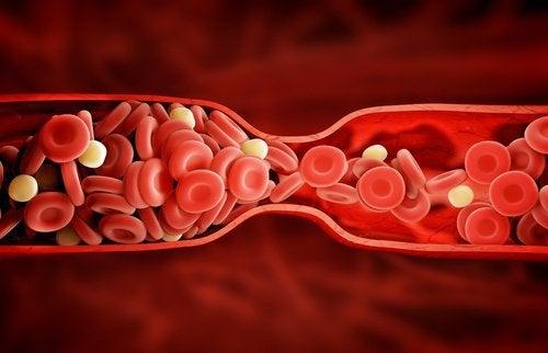 οι ωφέλειες του κουρκουμά, ατορβαστατίνη κατά της χοληστερίνης