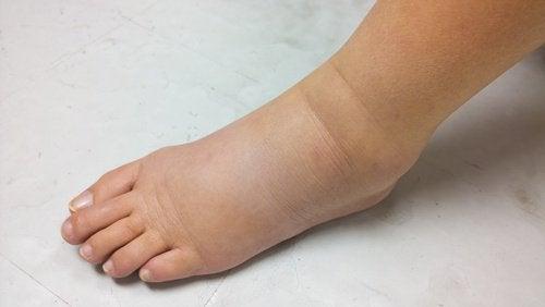Σημάδια νεφρικής ανεπάρκειας, οίδημα, φλεγμονή στα πόδια