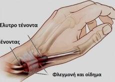 tenontoelytritida-1