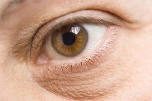 αρνητικές επιδράσεις στα μάτια