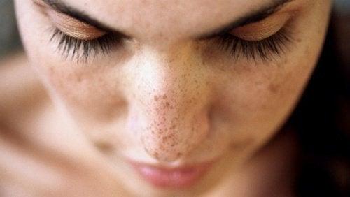 Σκούρες κηλίδες στο πρόσωπο: 6 θεραπείες για να απαλλαγείτε!