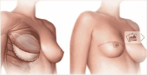 Τι πρέπει να γνωρίζετε πριν τη μαστεκτομή;
