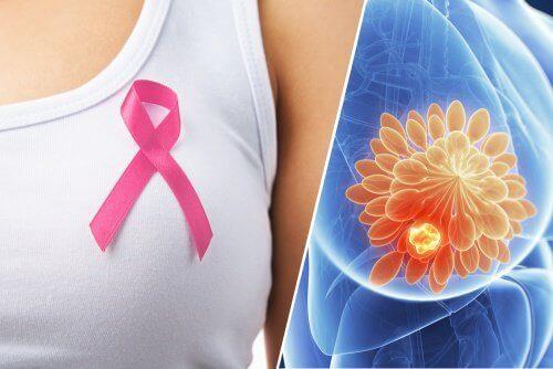 Ανιχνεύοντας τον καρκίνο του μαστού με ένα χάπι