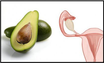 avocado-mitra