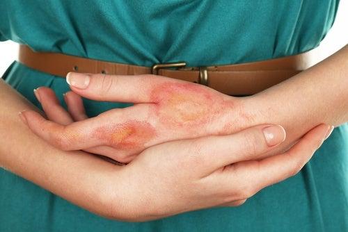Καρκίνος του δέρματος: