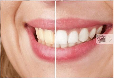 Λευκάνετε τα δόντια