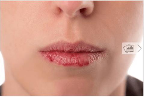 Γυναίκα με ξηρά χείλη