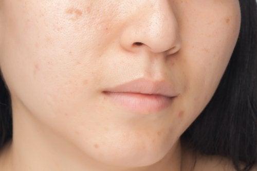 Μάσκες προσώπου για τις πανάδες στο πρόσωπο