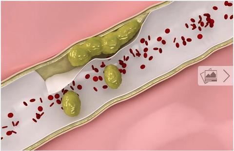 9 τροφές για να καθαρίσετε τις αρτηρίες σας φυσικά