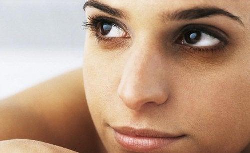 Κόλπο με πάγο - Γυναίκα με μαύρους κύκλους κάτω από τα μάτια