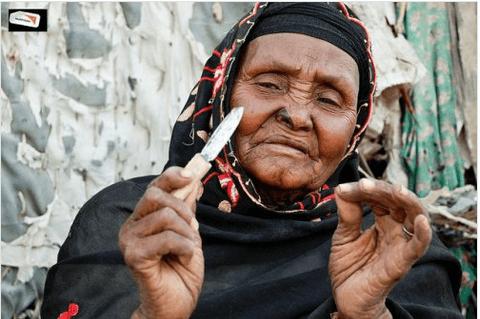 Η Αφρική λέει ΟΧΙ στον ακρωτηριασμό των γεννητικών οργάνων