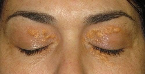 Λευκά σημάδια γύρω από τα μάτια ή ξανθέλασμα: αντιμετώπιση