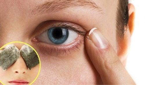 5 θεραπείες για τους μαύρους κύκλους κάτω από τα μάτια