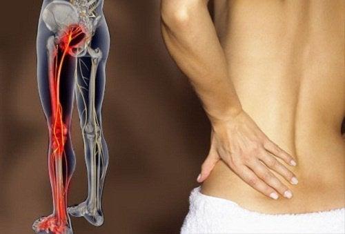 Πώς να απαλλαγείτε από τον πόνο στο ισχιακό νεύρο με άσκηση