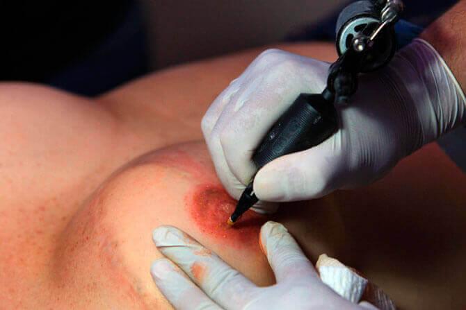 Καλλιτέχνες του τατουάζ δίνουν θηλυκότητα μετά τον καρκίνο