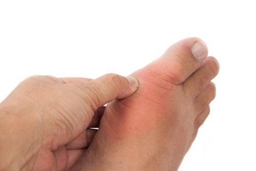 Φυσικές θεραπείες για το ουρικό οξύ και την ουρική αρθρίτιδα