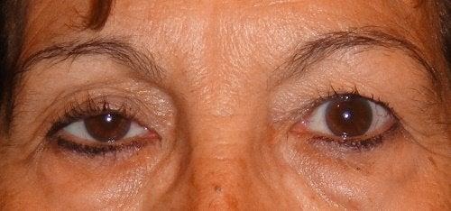 κακή όραση - βλεφαρόπτωση