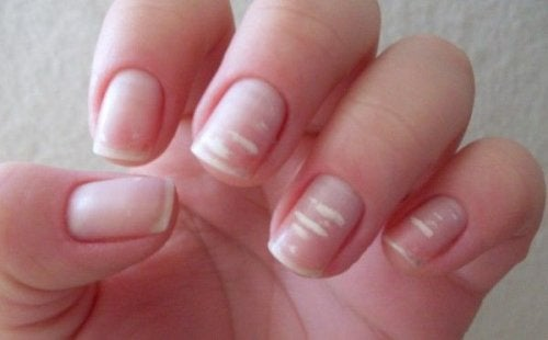 Λευκά σημάδια στα νύχια σας
