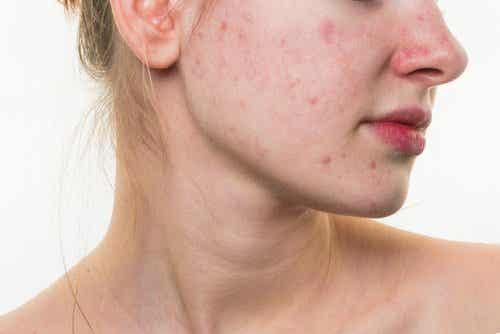 5 τροφές που μπορούν να καταστρέψουν το δέρμα του προσώπου σας