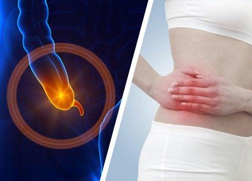 Σημάδια της σκωληκοειδίτιδας - Σκωληκοειδίτιδα και γυναίκα με πόνο