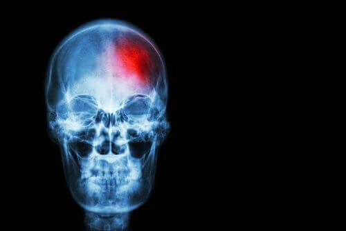 Σημάδια εγκεφαλικού επεισοδίου που πρέπει να γνωρίζετε