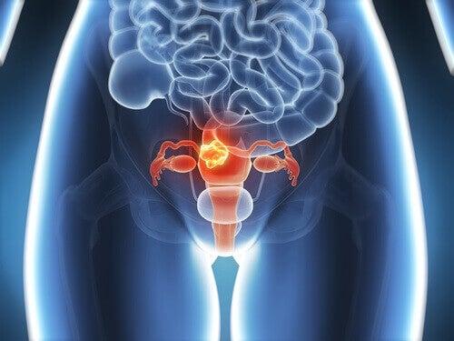Καρκίνος του τραχήλου: 6 συμπτώματα που πρέπει να ξέρετε