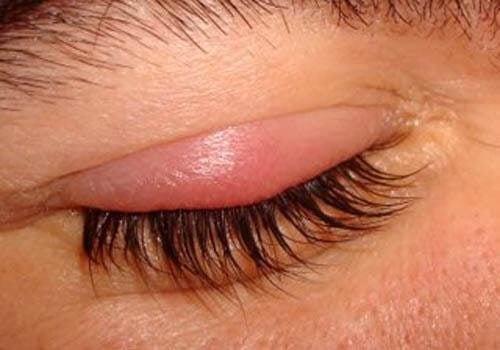 Σωστή υγιεινή ενάντια στο κριθαράκι του ματιού