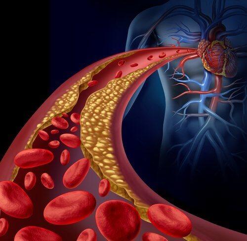 θεραπεία για την κακή χοληστερίνη