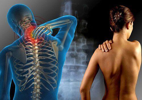 Πόνος στις αρθρώσεις - Γυναίκα με ινομυαλγία