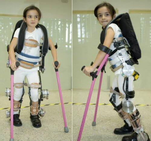 Παραπληγικά παιδιά - Κοριτσάκι με εξωσκελετό