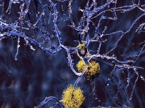νευροεκφυλιστικές παθήσεις στο στόχαστρο του κουρκουμά, αλτσχάιμερ