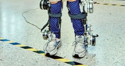 Παραπληγικά παιδιά - Δοκιμή εξωσκελετού