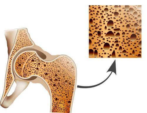 Πώς να καταπολεμήσετε την οστεοπόρωση με φυσικές θεραπείες