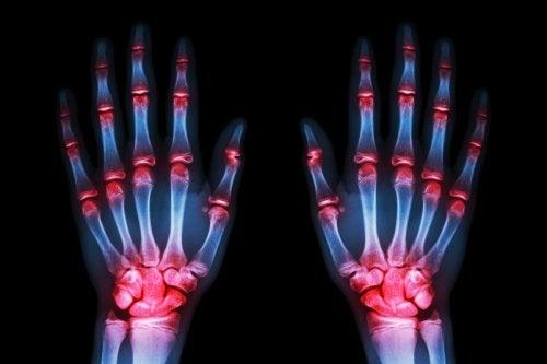 Ακτινογραφία χεριών με αρθρίτιδα