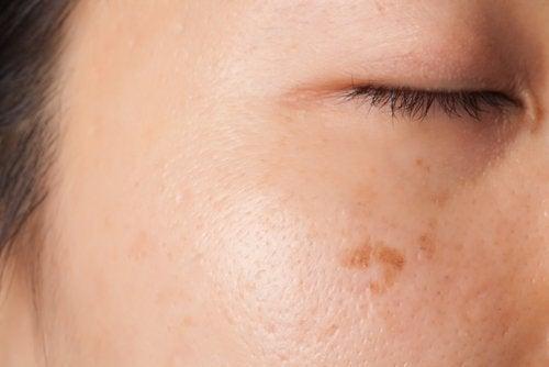 Σημάδια στο δέρμα- τα οφέλη της ωμής πατάτας